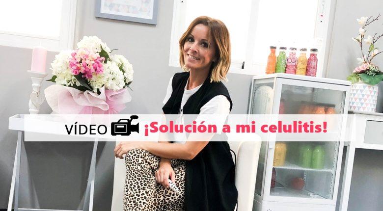 Vídeo: ¡Solución a mi celulitis!